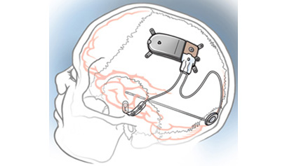 Electrical stimulation devices implanted in the brain [illustration]